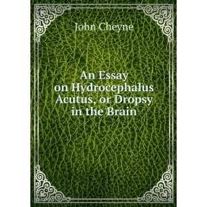 on Hydrocephalus Acutus, or Dropsy in the Brain John Cheyne Books