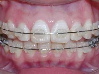 Dental A22 Orthodontics Roth Ceramic Bracket Braces